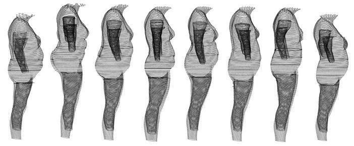 Glöm BMI – BVI är det nya verktyget