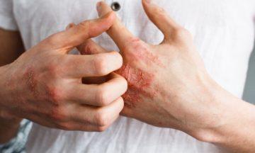 Torra händer på grund av handhygien vid corona