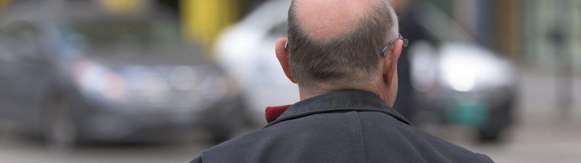 Därför blir man skallig och gråhårig