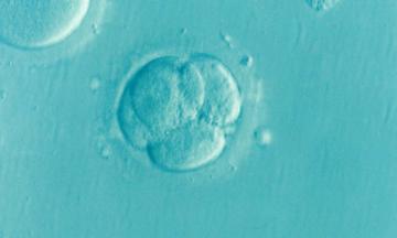 Kvinnlig infertilitet