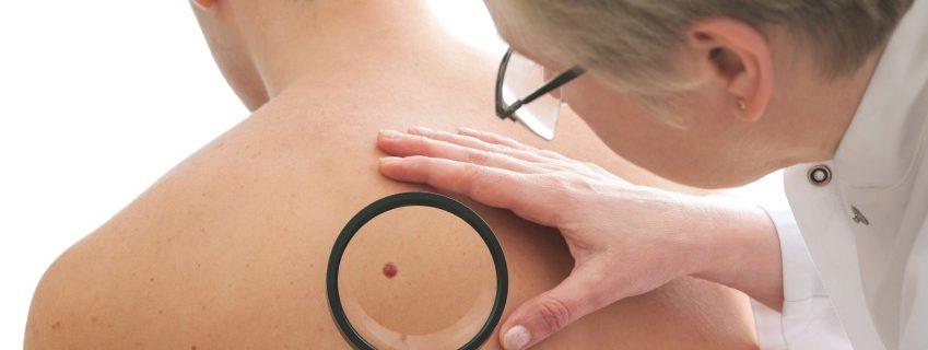 Lippenherpesvirus hilft gegen Hautkrebs