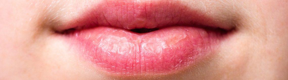 5 tips mot torra läppar